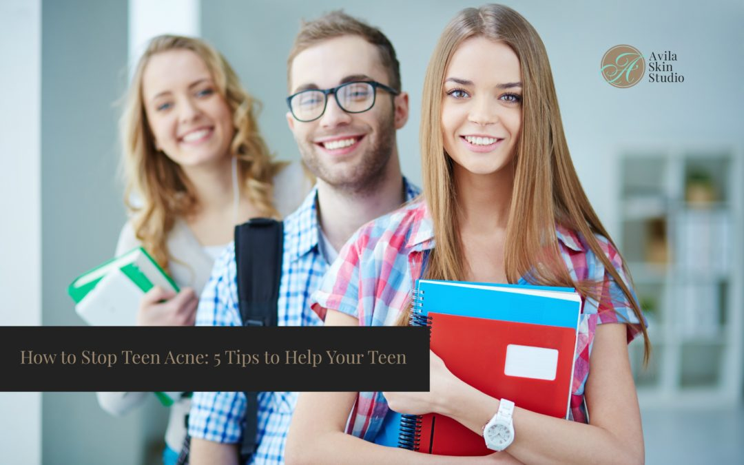 How to Stop Teen Acne: 5 Tips to Help Your Teen