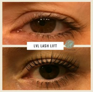 LVL Lash Lift - Eyelash Services at Avila Skin Studio