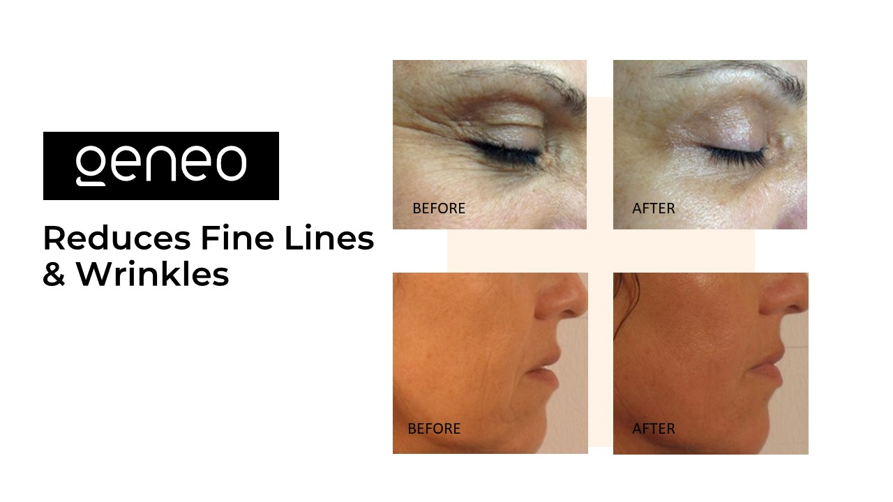 Before and after OxyGeneo facial